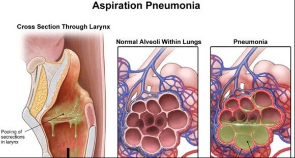 Aspiration pneumonia nursing home negligence lawsuit